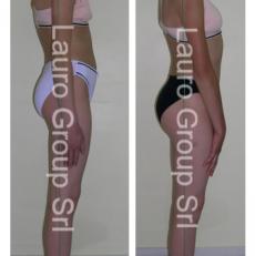 Caso Clinico – Ipercifosi dorsale
