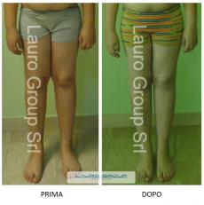 Caso clinico – Valgismo delle ginocchia